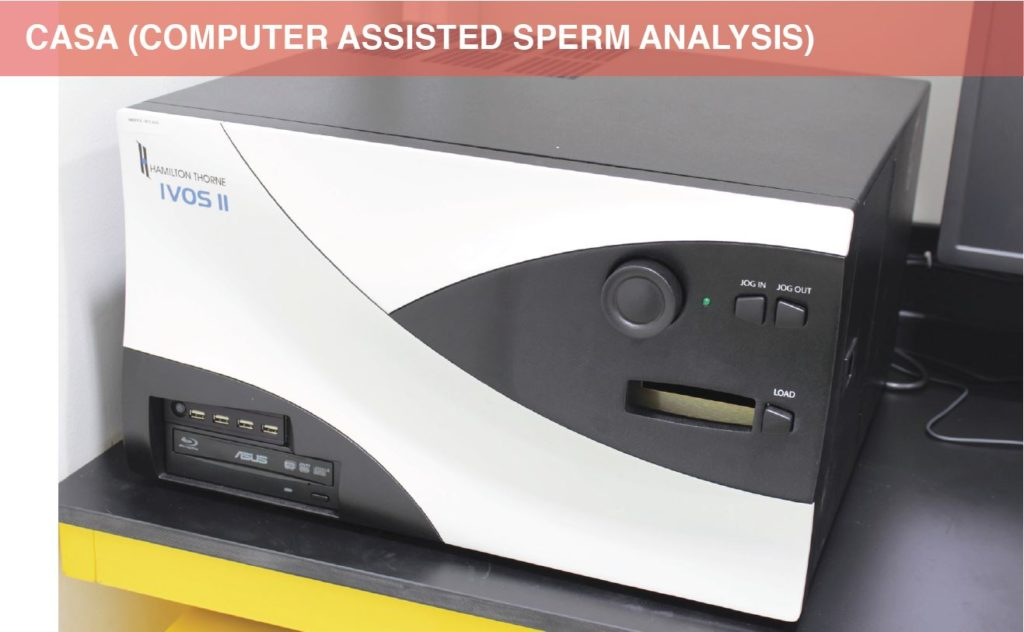 CASA (Computer Assisted Sperm Analysis)